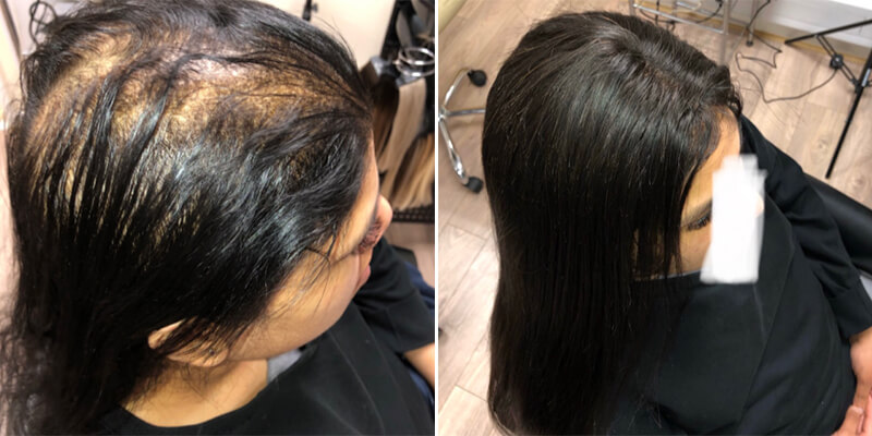 Hair Integration Before And After